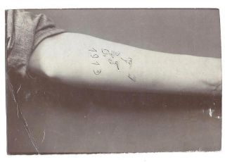 A Collection of Five Early 20th Century Photographs of Hungarian Arm Tattoos.